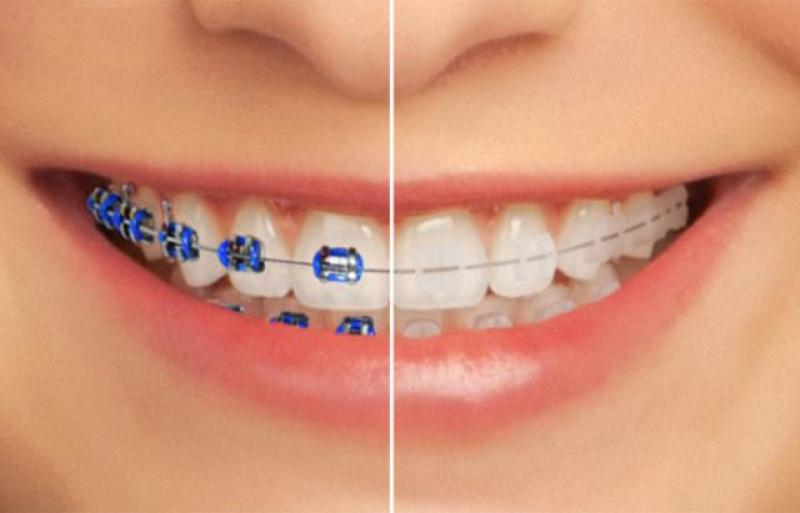 Les prix des bagues dentaires au maroc